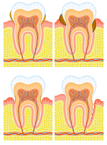 Maladies parodontales