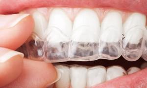 blanchiment-dentaire-eclaircissement