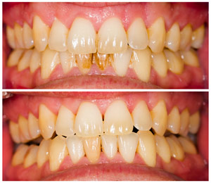 Detartrage dentaire maison